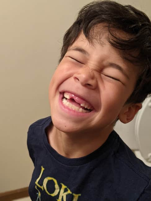 Author's son smiling with two front teeth missing.